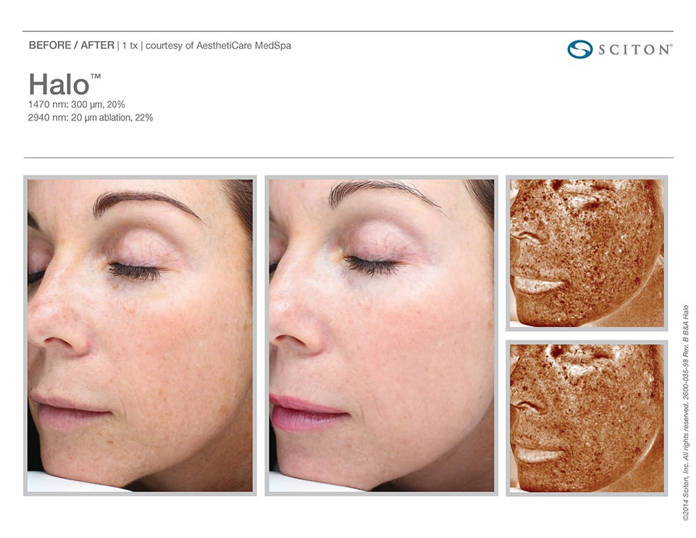 Halo Skin Rejuvenation