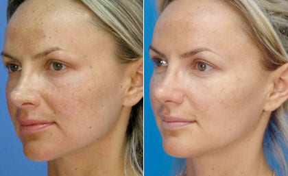 MicroLaserPeel before and Afters